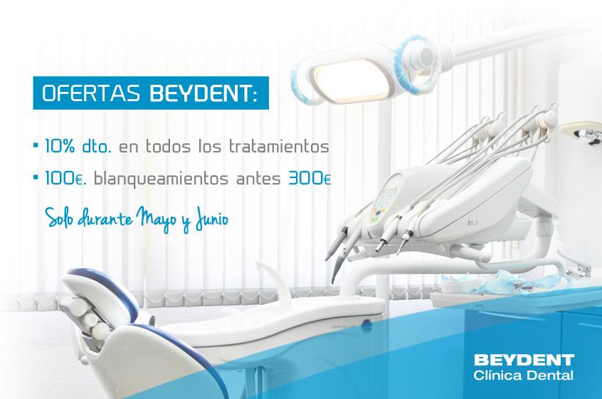 Oferta-blanqueamientos-dentales-madrid-zona-ventas