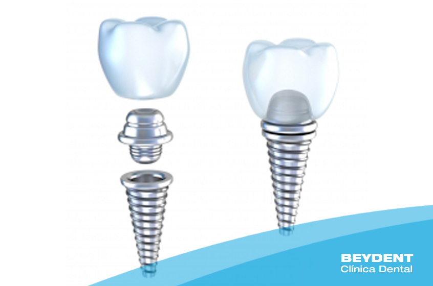 Implantologia-La-especialidad-Beydent