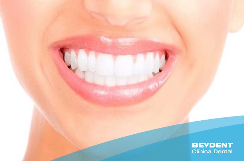 Blancorexia-la-obsesion-que-destruye-nuestra-salud-dental