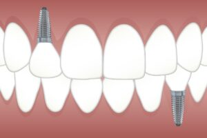 Prótesis dental tipos