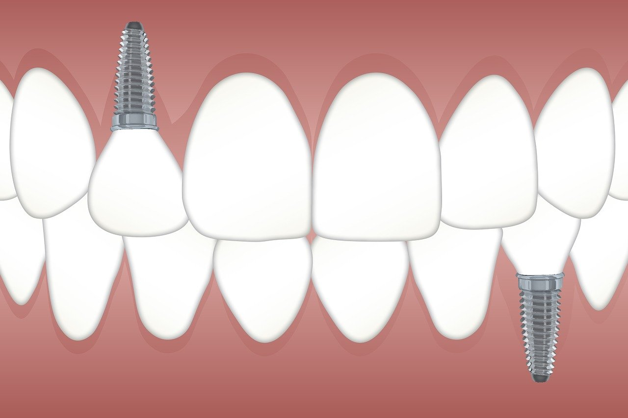 Prótesis dental tipos